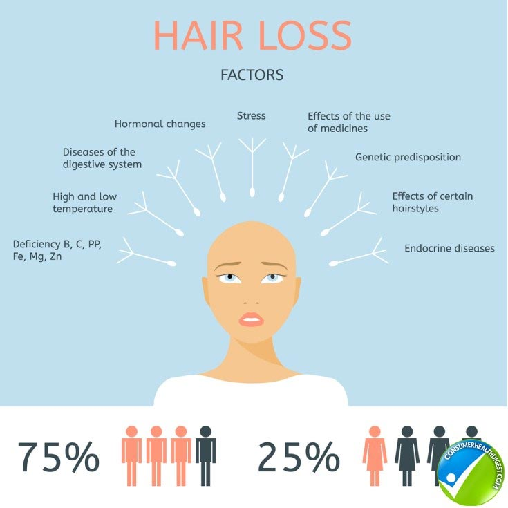 Hair Loss Types, Causes, Preventions and Treatments