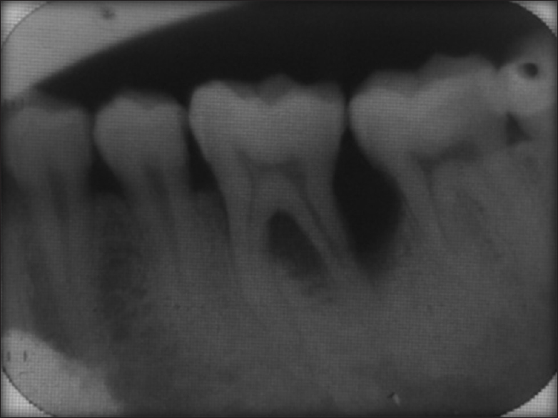 Management of localized advance loss of periodontal support