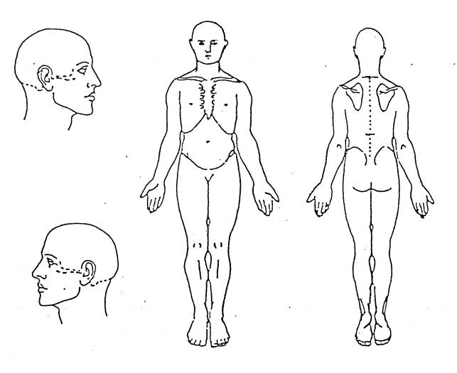 body diagram pain scale