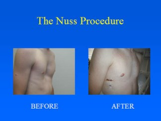 The Nuss Procedure