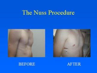 The Nuss Procedure