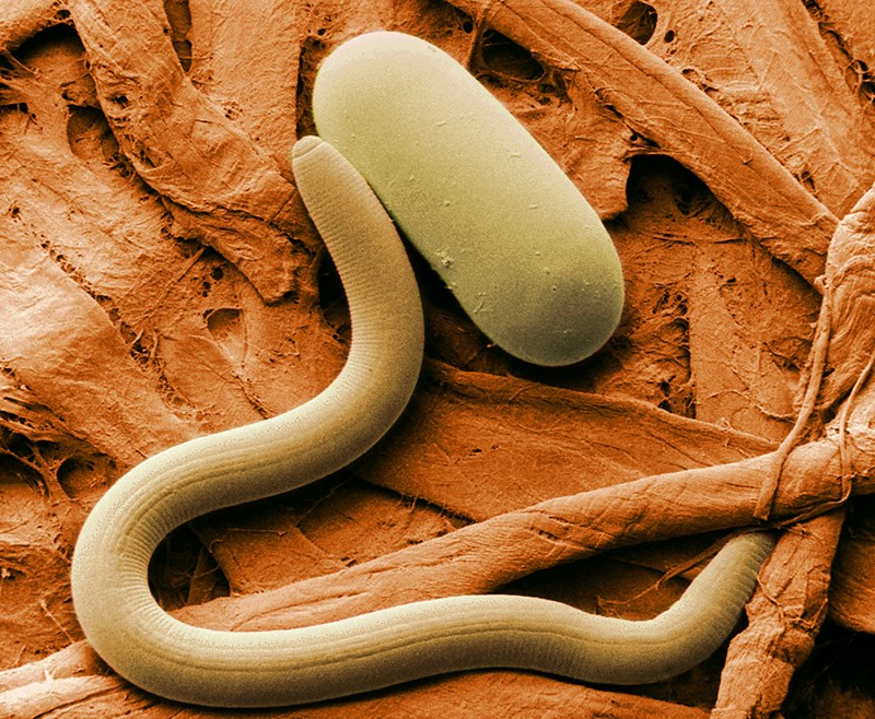Large Of Worm Under Microscope