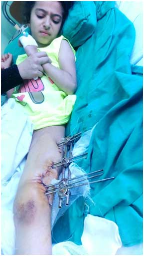 """This young lady, ten year old Ghina, now recovering in Damascus, was shot nearly two months ago by a sniper in the besieged town of Madaya. The sniper used International Humanitarian Law (Rome Statute) prohibited bullets """"which expand and flatten inside the human body."""" Photo: Franklin Lamb 9/3/2016"""