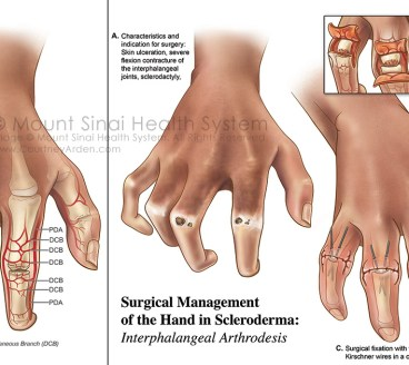 Scleroderma medical illustration