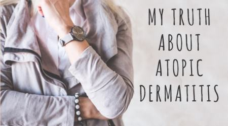 My Truth About Atopic Dermatitis #UnderstandAD