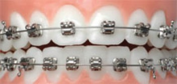 braces in ovation