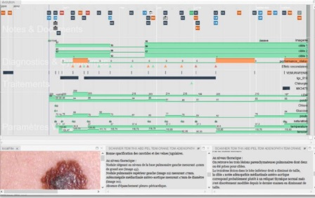 LifeLines for Visualizing Patient Records