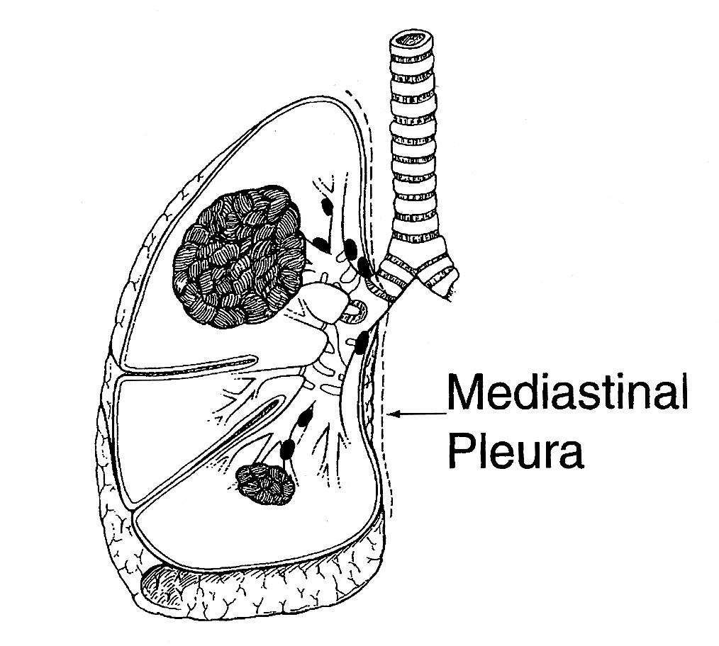 chest lymph nodes diagram