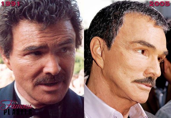 burt-reynolds-facelift