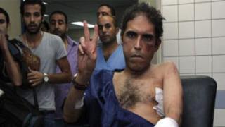 Khalid Dawud, juru bicara Partai Ad-Dustur setelah diserang pihak tak dikenal (egyptwindow)