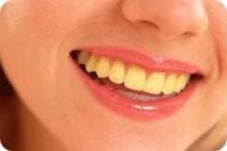 Gigi Kuning (ilustrasi).  (listas.20minutos.es)