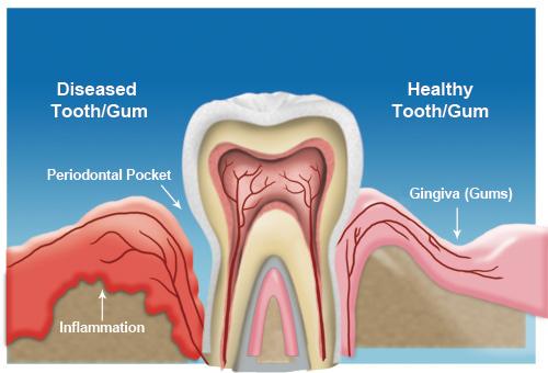 Treatment for Gum Disease in Dallas Periodontal Associates