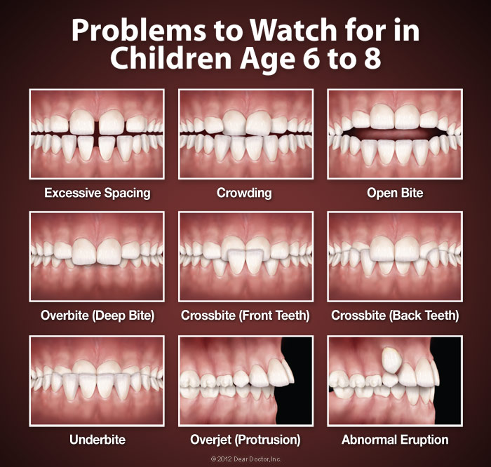 Orthodontics Horizon Dental for Horizon Blue Cross Blue Shield of