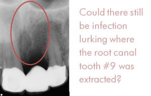 root-canal-infection-gone