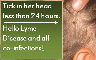 Tick in head Hello Lyme and co infections