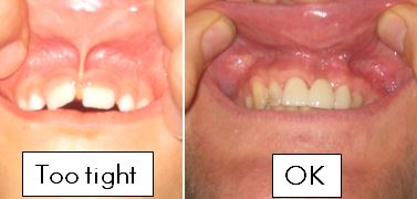 Labial-Frenectomy-Visual-Diagnostics