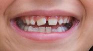 Teeth-Space-But-Crooked