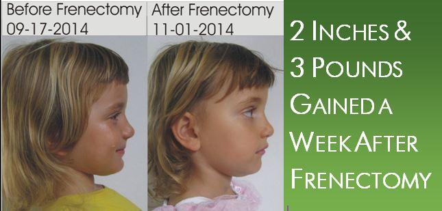 Dental Frenectomy Improvements