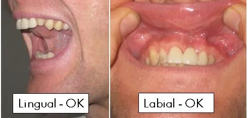 No-Lingual-or-Labial-Frenectomy-Needed2