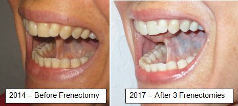 lingual frenectomy