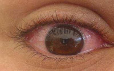 Remedios para los ojos enrojecidos