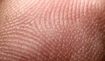 Como prevenir las marcas en la piel
