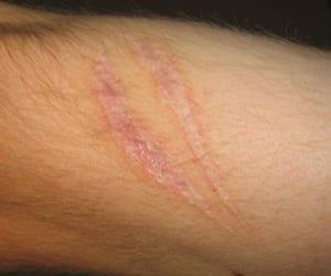 Trucos caseros contra las cicatrices