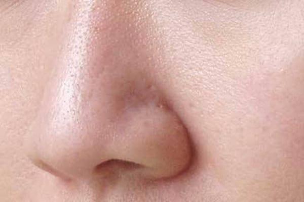 piel porosa