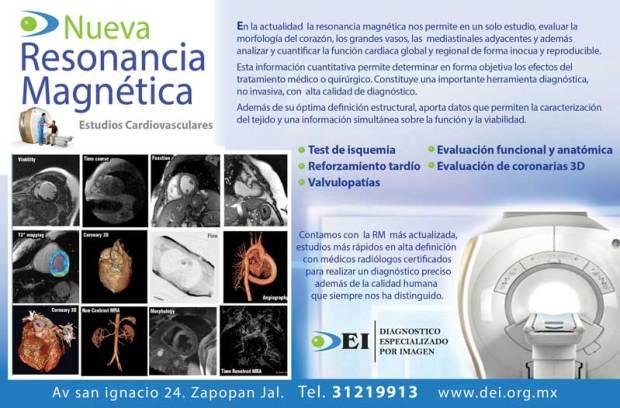 resonancia-magnetica-estudios-de-cardio