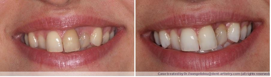 Internal whitening for teeth