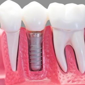 Model reprezentand un implant dentar