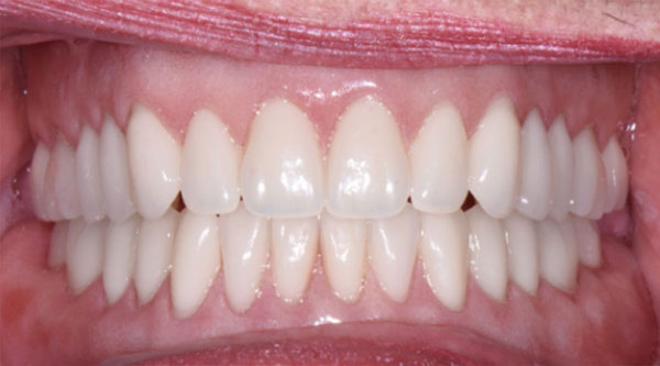 Dentures procedure, results with before/after photos of dentures