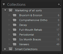 Photoshop Lightroom Collections make it easy to set aside and work with select photos to use.