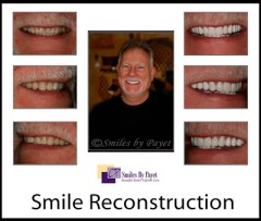 See an example poster of a FMR for a dental website.