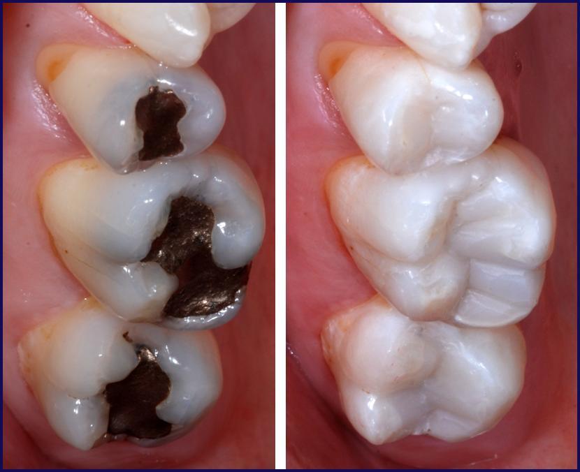 Direct Restorations Posterior Composite Three techniques for