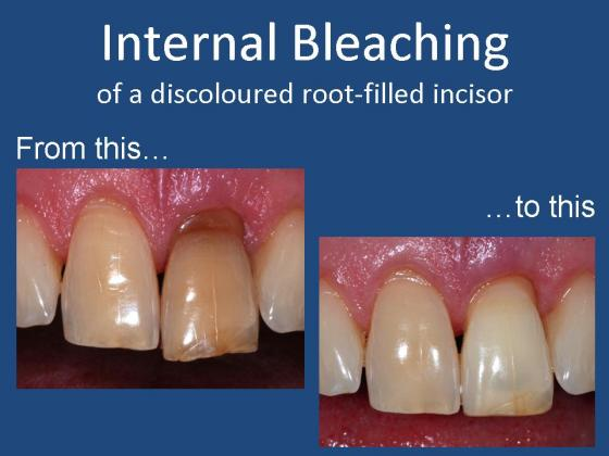 Direct Restorations Internal Bleaching  Enhanced Dental CPD Online
