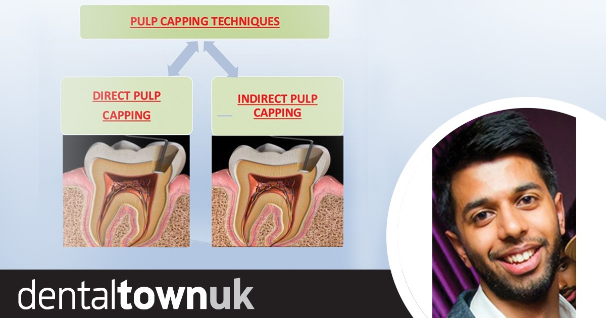 The Power of the Pulp (Part 1) by Dr Kishan Sheth - Dentaltown