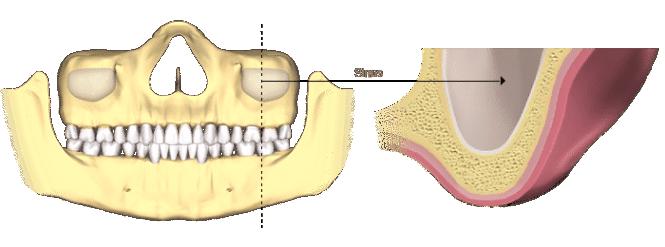bone-loss-sinus (2)
