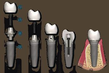 dental-implant-breakdown
