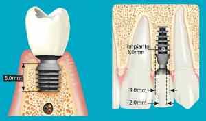 implantologia-milazzo-06