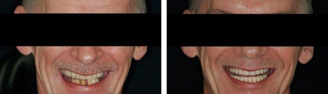 implantologia17