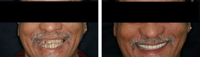 implantologia21