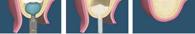 sinus-lift-procedure-balloon2