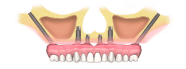zygomaticus-dental-implant-type