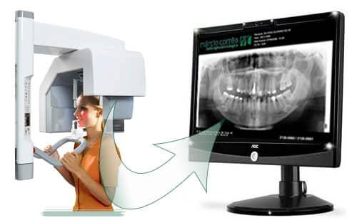 panoramica-dentaria