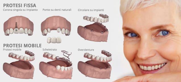 Protesi dentali Dentarie prezzi costi
