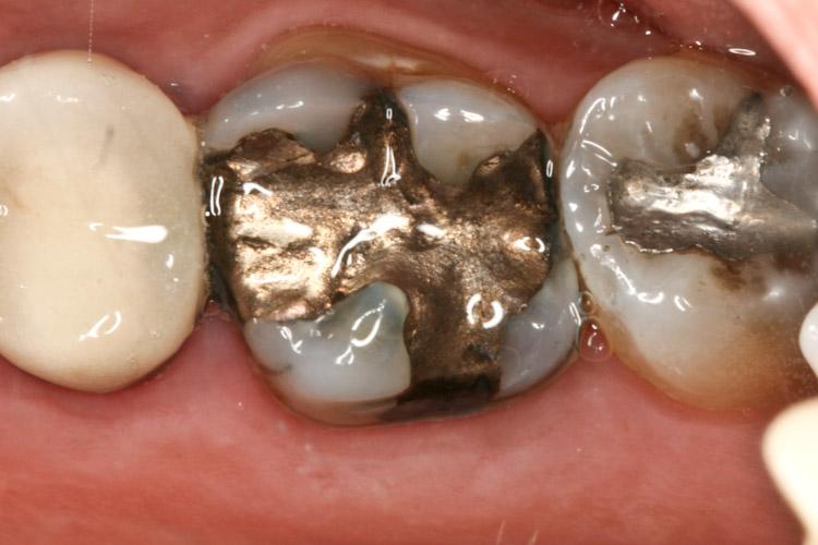 Dental Fillings and Filling Material