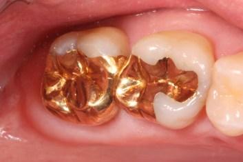 cast gold fillings