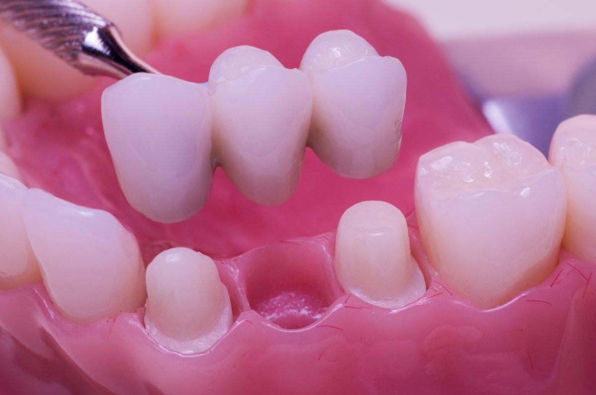 Fixed Partial Dentures- Dental Bridges