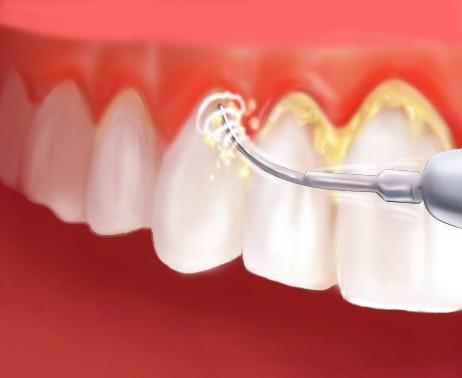 dental scaling